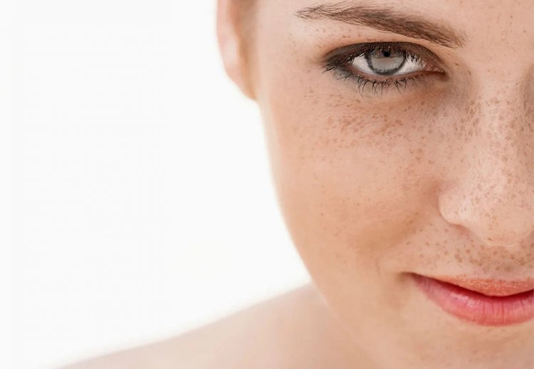 Причины появления пигментных пятен на лице
