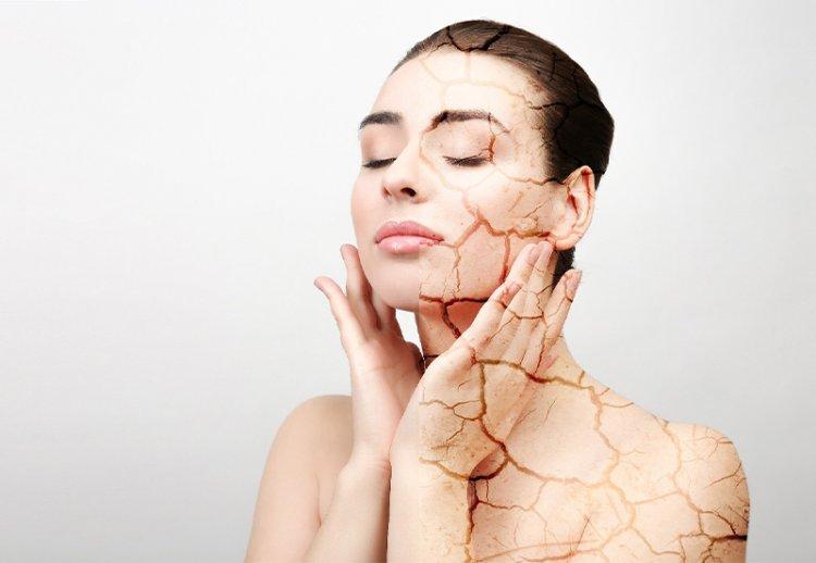 Как ухаживать за кожей в отопительный сезон