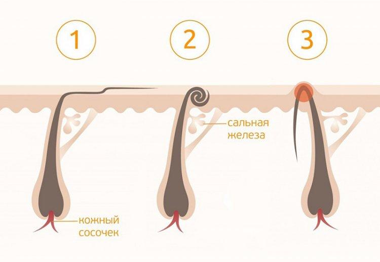 врастание волос после бритья